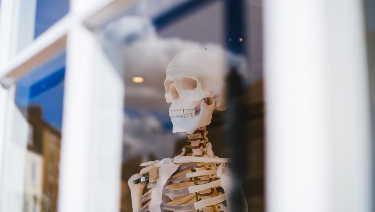 Osteoporóza viditelná na modelu lidské kostry.