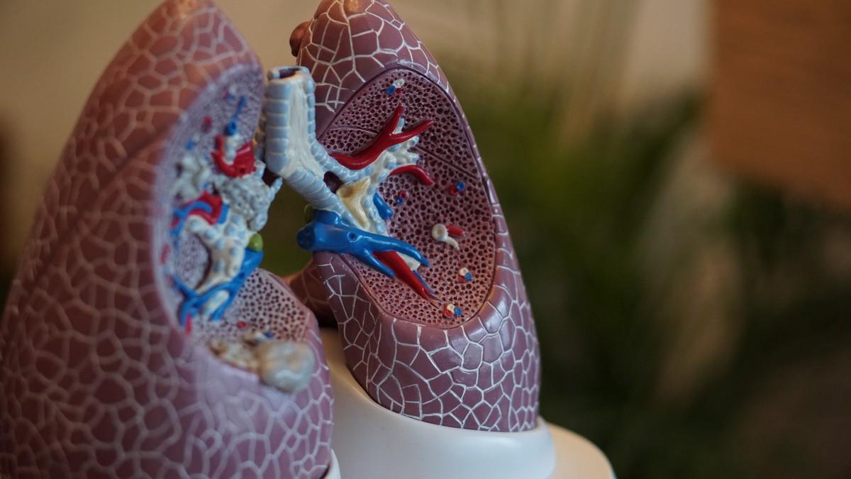 Plicní embolie zpozorovatelná na modelu plic.
