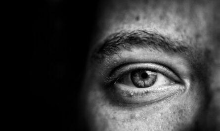 Šedý zákal viditelný na přímo na oku.
